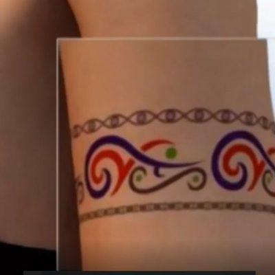 Como acontece a remoção de tatuagem com laser?